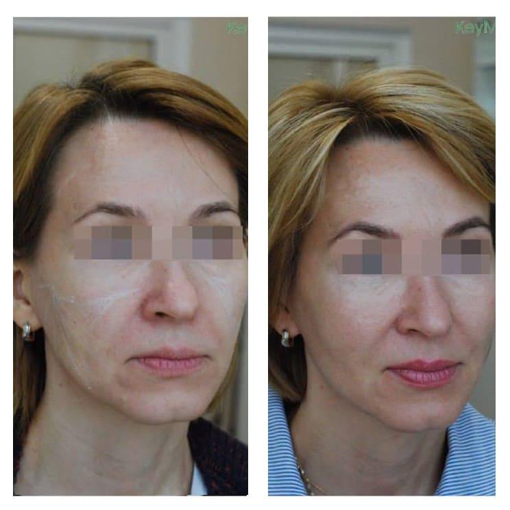 Наполнение средней трети филером Aliaxin GP и ремоделирование лица препаратом Profhilo. Период между фотографиями 3 месяца