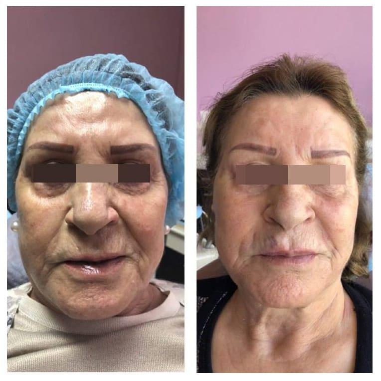 Работа с возрастными пациентами очень ответственна. Пациентке 76 лет. заполнение щек препаратом Radiesse периоральная зона ( носогубная, марионеточные , кисетные морщины) препаратом Belotero Volume периорбитальная зона и зона лба - Belotero Balance.