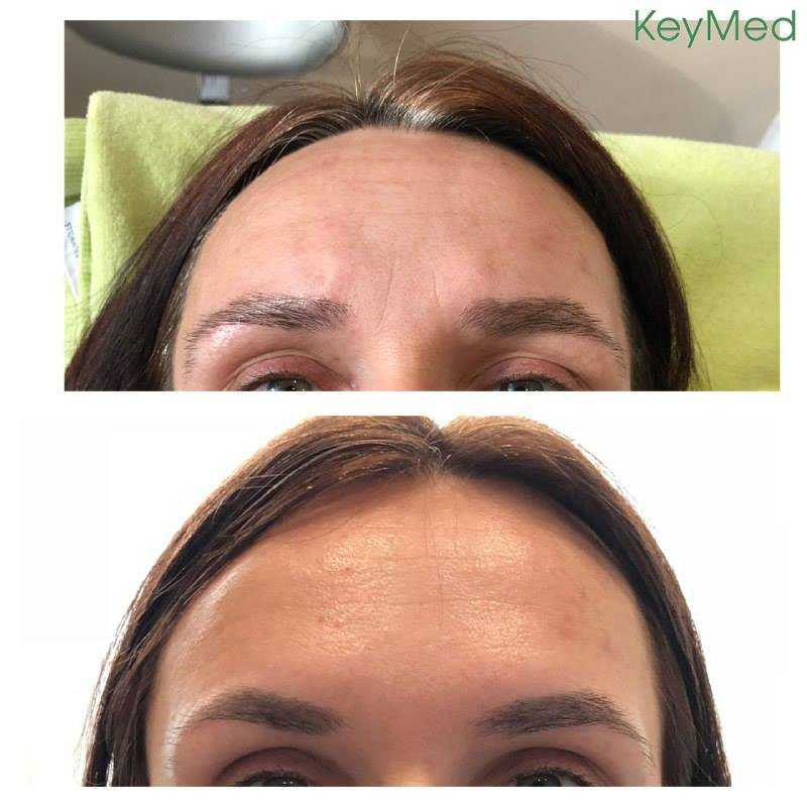 Результат ботулинотерапии в KeyMed косметологический центр. И это только 7-й день после процедуры - толи еще будет. Ведь морщинки разглаживаются на 10-20 день