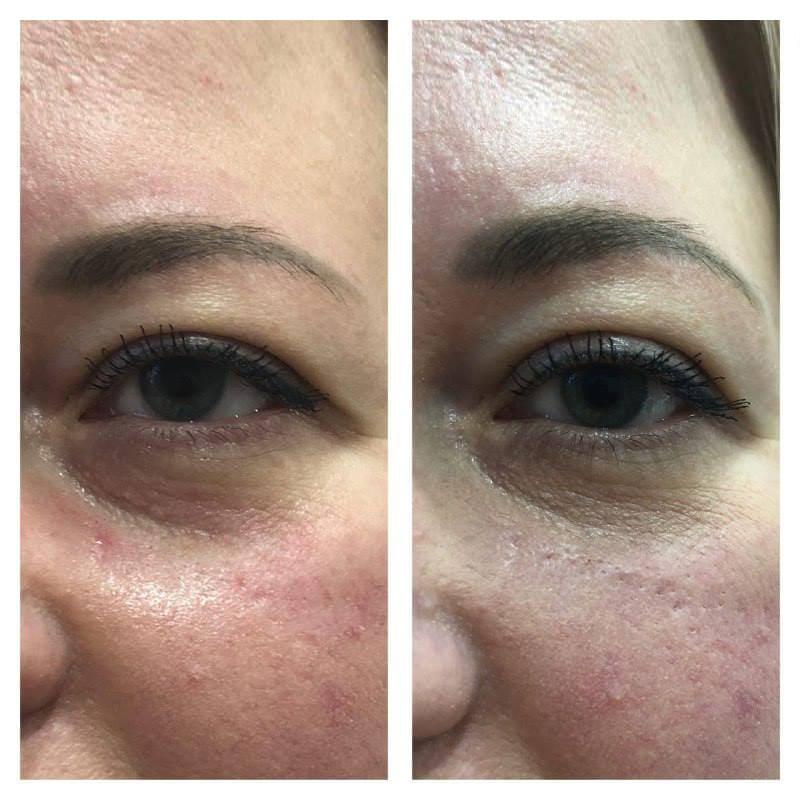 Процедура заполнения носослезной борозды С возрастом наблюдается потеря жира в области щек и провисание средней трети лица. Это приводит к появлению запустеваний (впалости, борозды) кожи под глазами, придавая глазам уставший вид. Современные инъекционные методики позволяют без хирургического вмешательства бороться с эффектом усталых глаз без длительной реабилитации и осложнений.
