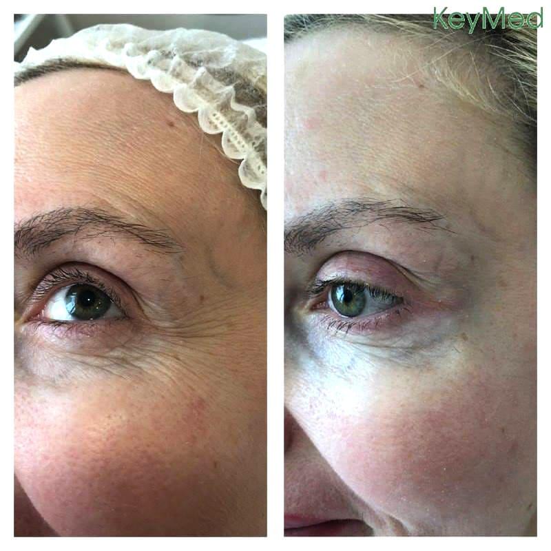 """Избавиться от """"этих надоевших морщин"""" поможет ботулинотерапия. Результаты этой процедуры в области вокруг глаз и лба на фото."""