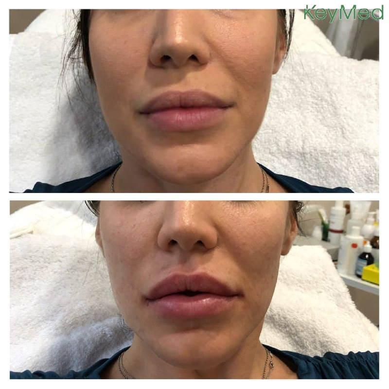 На фото результаты процедуры наполняющих инъекций в KeyMed by dr.Tatiana Kobets - увеличение губ. Пухлые, чувственные губы - это красиво. В этой процедуре важно соблюсти правильные пропорции лица и не допустить гипер объемов.