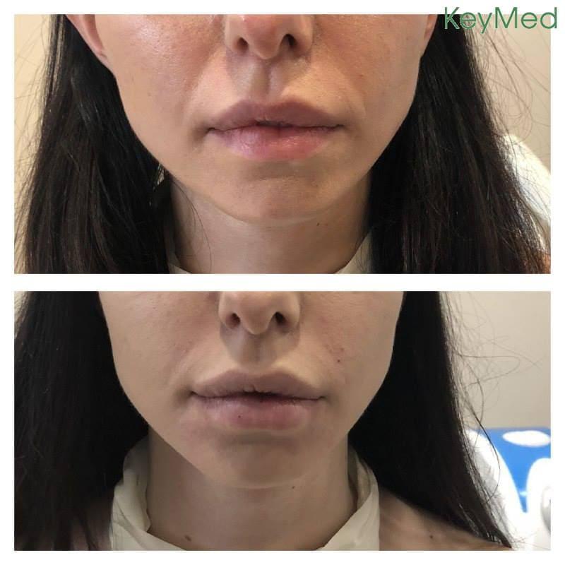 На фото результаты работы KeyMed by dr.Tatiana Kobets Пациенту проведены: процедура наполнения носогубных складок;тпроцедура коррекции ассиметрии губ препаратом Juviderm Ultra 3